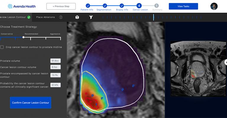 La thérapie du cancer de la prostate basée sur l'IA remporte la désignation de percée