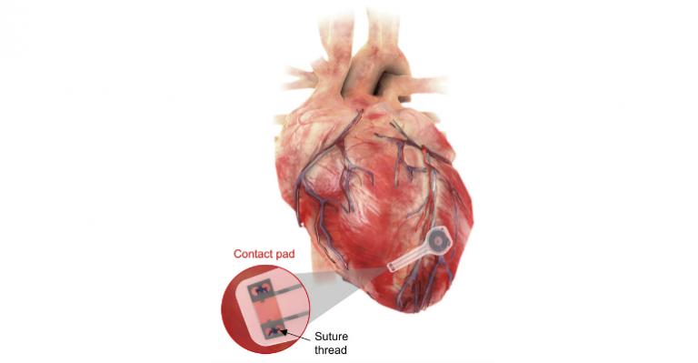 Pouvez-vous imaginer un stimulateur cardiaque qui fait son travail, puis tire un Houdini ?