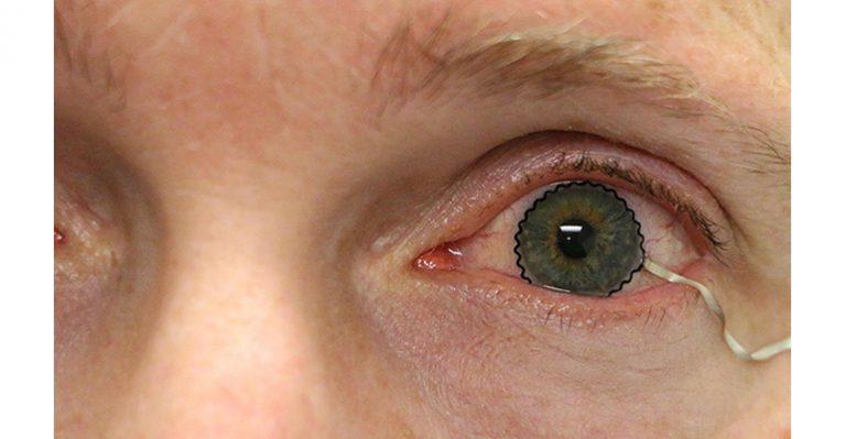 La technologie des lentilles de contact permet la surveillance des conditions médicales